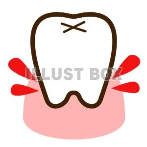 歯肉からの出血.jpg
