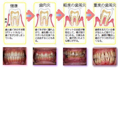 歯周病(説明用画像).jpg