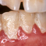 歯垢の写真.jpg