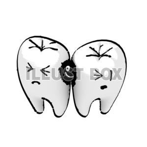 歯間う蝕.jpg